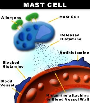 lipitor and rhabdomyelitis